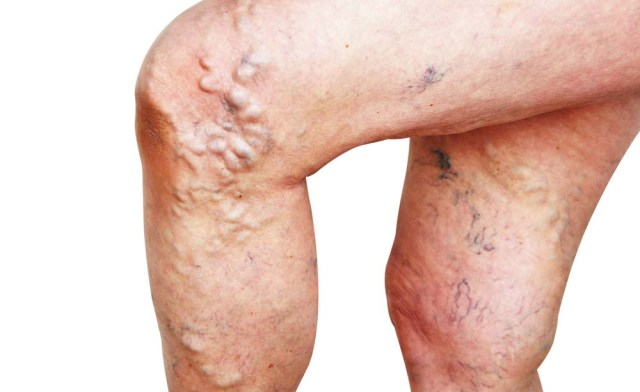 Infiammazione di trattamenti di nodi di gemorroidalny