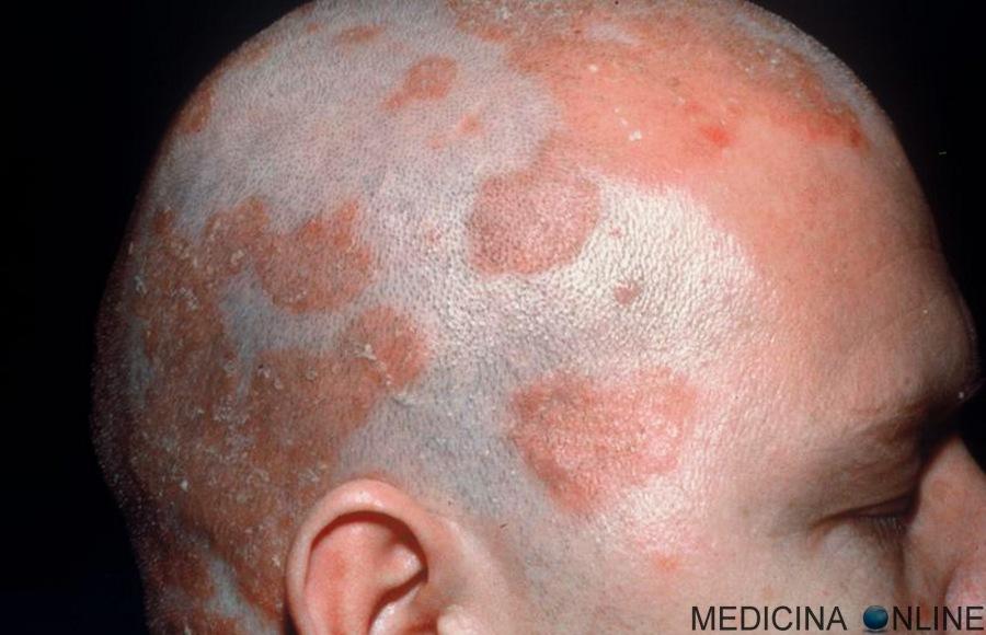 Medicina Online Dermatite Seborroica Immagini Nuca Cuoio