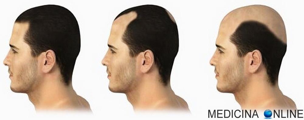 Alopecia Androgenetica Maschile E Femminile Eta Sintomi E Cura Medicina Online