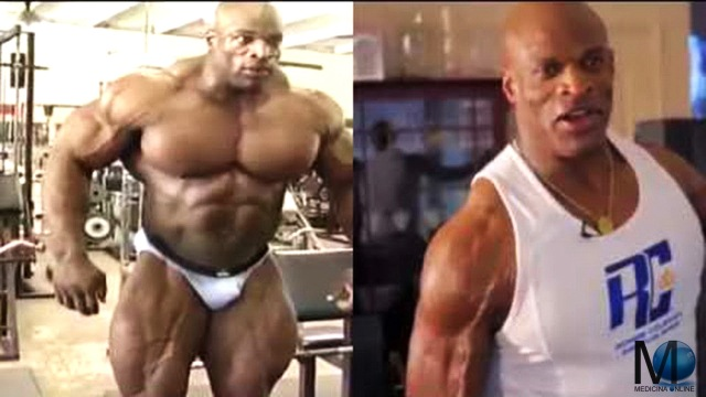 MEDICINA ONLINE RONNIE COLEMAN THEN AND NOW HD ERNIA OSPEDALE HOSPITAL DEATH DEAD MORTE BODY BUILDING DOPING LETTERA MUSCOLI COME RICONOSCERE UN DOPATO IN PALESTRA ATLETA TEST ANTIDOPING IPPOLITO RECORD.jpg