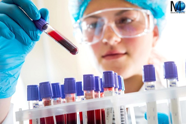 MEDICINA ONLINE LABORATORIO BLOOD TEST EXAM ESAME DEL SANGUE ANALISI CLINICHE GLOBULI ROSSI BIANCHI PIATRINE VALORI ERITROCITI LEUCOCITI ANEMIA TUMORE CANCRO LEUCEMIA FERRO FALCIFORME MEDITERRANEA E