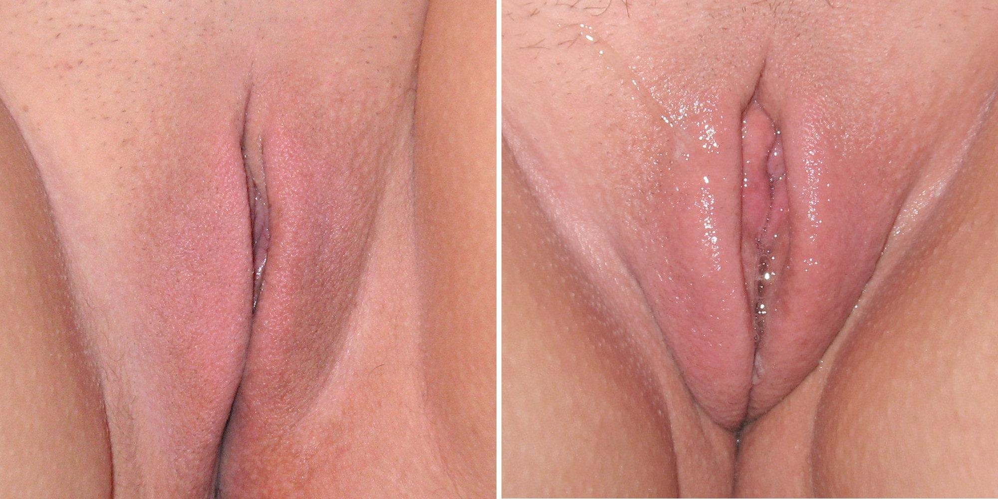 figa con grande clitoride