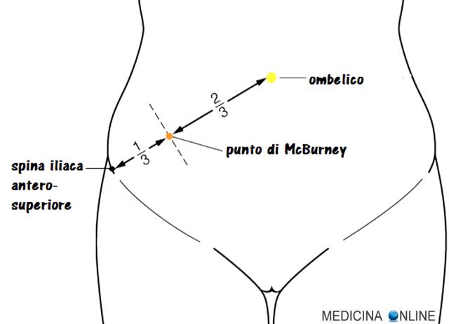 MEDICINA ONLINE Appendicite Punto di McBurney DOLORE 4 QUADRANTI SETTORI 9 REGIONI ADDOMINALI SEMEIOTICA ANATOMIA TOPOGRAFICA ORGANI CONTENUTI IPOCONTRIO FIANCO DESTRO SINISTRO IMMAGINI FOSSA ILIACA LINEA SOTTOCOSTALE