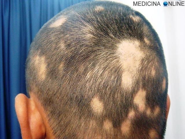 MEDICINA ONLINE CAPELLI UOMO DONNA FINASTERIDE ALOPECIA AREATA O ANDROGENETICA DIFFERENZE CALVIZIE PELO CAPELLO RASATO DECORSO