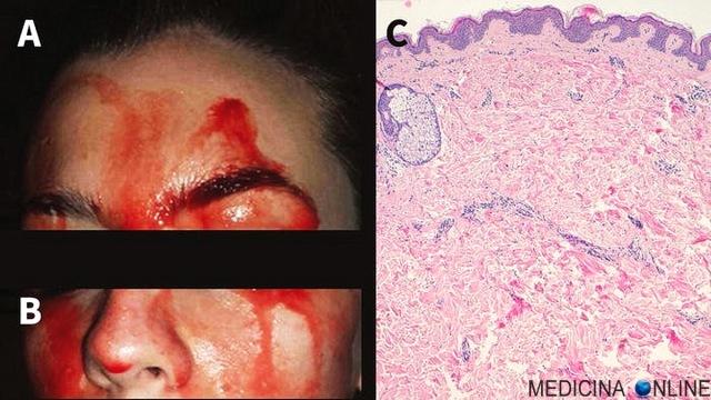 MEDICINA ONLINE EMATOIDROSI SUDARE SANGUE SUDORE PORI PELLE SANGUINARE EMORRAGIA STUDIO LETTERATURA SCIENTIFICA hematohidrosis-describes-the-condition-in-which-blood-comes-out-of-unbroken-pores.jpeg