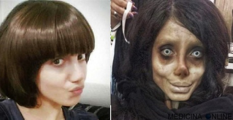 01 MEDICINA ONLINE Sahar Tabar Angelina Jolie Extreme surgery effects