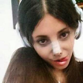 03 MEDICINA ONLINE Sahar Tabar Angelina Jolie Extreme surgery effects