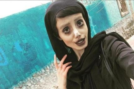 05 MEDICINA ONLINE Sahar Tabar Angelina Jolie Extreme surgery effects