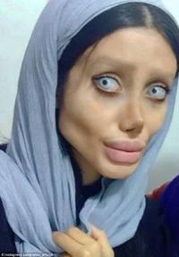 06 MEDICINA ONLINE Sahar Tabar Angelina Jolie Extreme surgery effects
