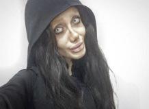08 MEDICINA ONLINE Sahar Tabar Angelina Jolie Extreme surgery effects