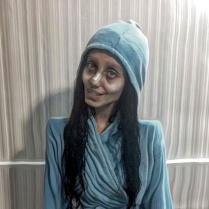 13 MEDICINA ONLINE Sahar Tabar Angelina Jolie Extreme surgery effects