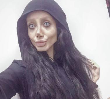 14 MEDICINA ONLINE Sahar Tabar Angelina Jolie Extreme surgery effects