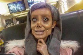 17 MEDICINA ONLINE Sahar Tabar Angelina Jolie Extreme surgery effects