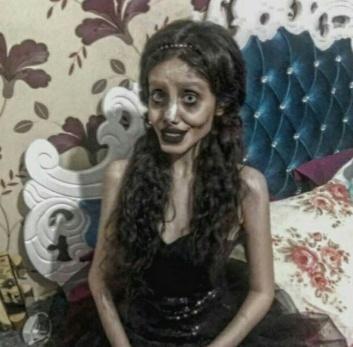 18 MEDICINA ONLINE Sahar Tabar Angelina Jolie Extreme surgery effects