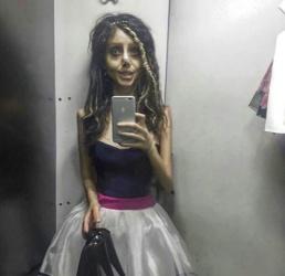 19 MEDICINA ONLINE Sahar Tabar Angelina Jolie Extreme surgery effects