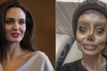 20 MEDICINA ONLINE Sahar Tabar Angelina Jolie Extreme surgery effects