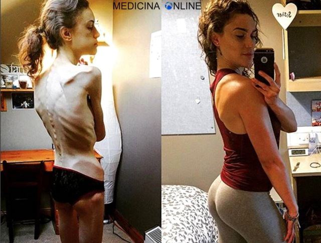 MEDICINA ONLINE ANORESSIA Emelle Lewis Instagram saved my life Anorexic whose weight plummeted to just FIVE stone
