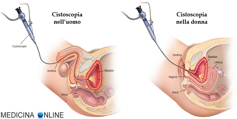 ecografia prostata transrettale diametri medi