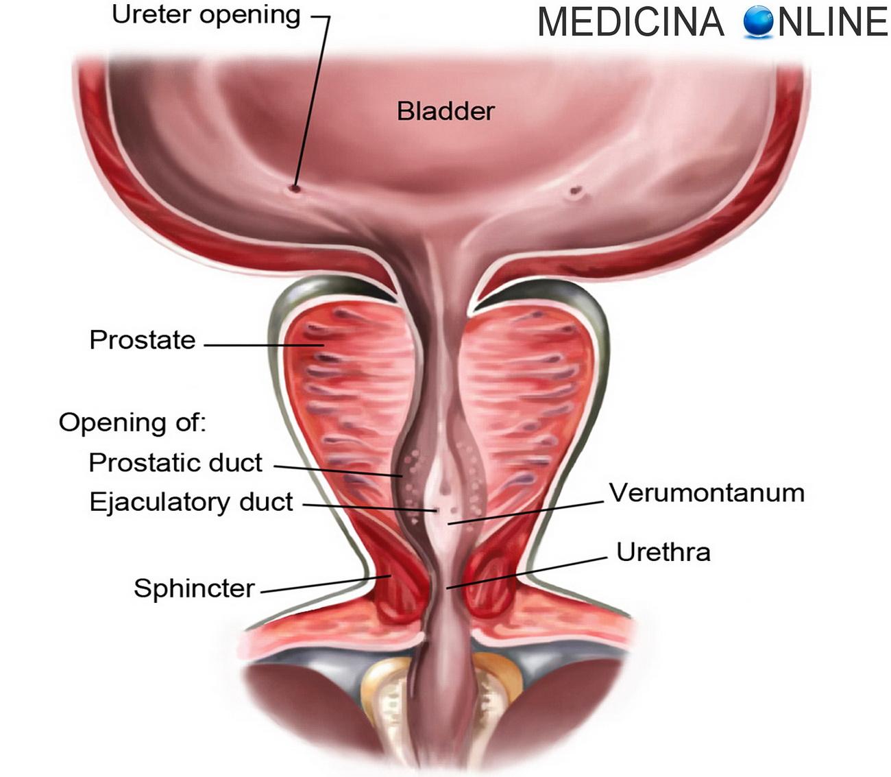 prostatite cronica sintomi e cause 2