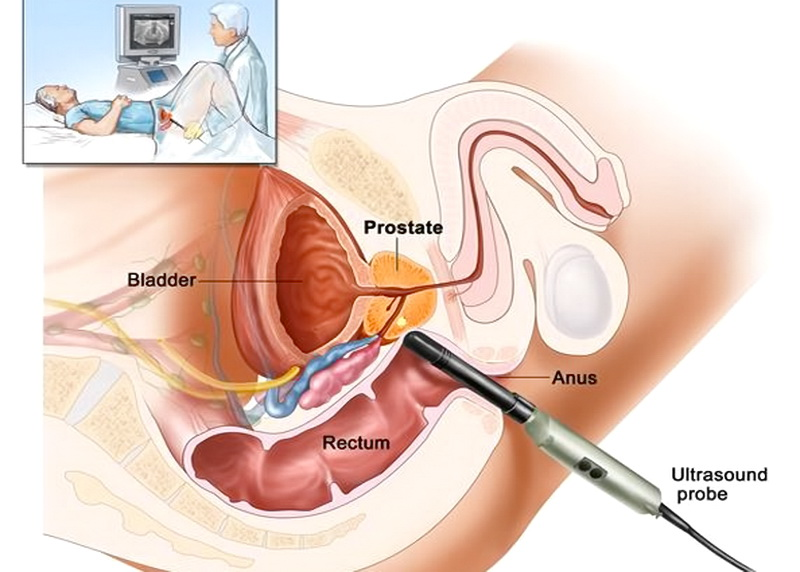 prostata ingrossata ad ultrasuoni