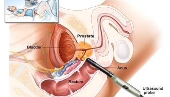 Prostatitis szexuális betegségek