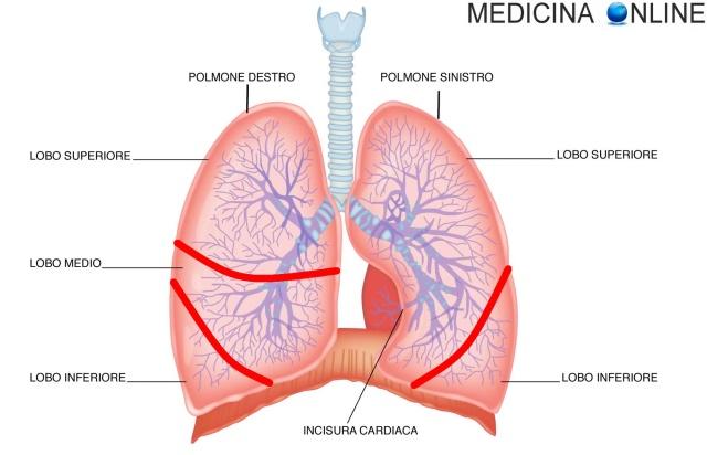 MEDICINA ONLINE POLMONI VIE AREE LOBI SEGMENTI CHIRURGIA LOBECTOMIA TUMORE CANCRO ASPORTAZIONE POLMONE LUNG CONSEGUENZE COMPLICANZE