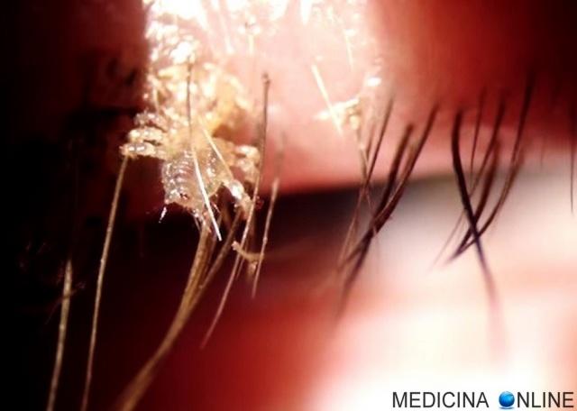 MEDICINA ONLINE PTHIRUS PUBIS PIATTOLA PIDOCCHIO DEL PUBE PUBE CIGLIA SOPRACCIGLIA PARASSITA PIDOCCHI PARASSITI ACETO QUANTO DURA INFEZIONE RAGNO PELLE ROSSORE PELI CAPELLI PRODOTTI ELIMINARE SESSO PARTNER eyelash-lice.jpg