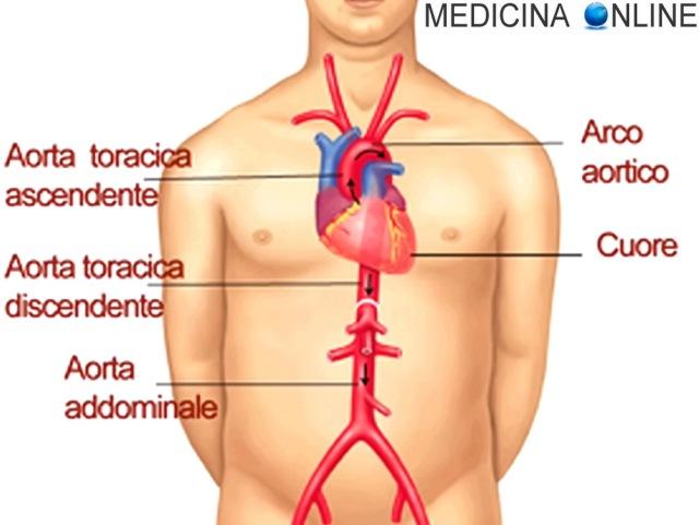 MEDICINA ONLINE CUORE AORTA TORACICA ADDOMINALE ASCENDENTE ARCO AORTICO DISCENDENTE RAMI GIUGULARE CAROTIDI CORONARIE ARTERIE VASI SANGUIGNI VASI