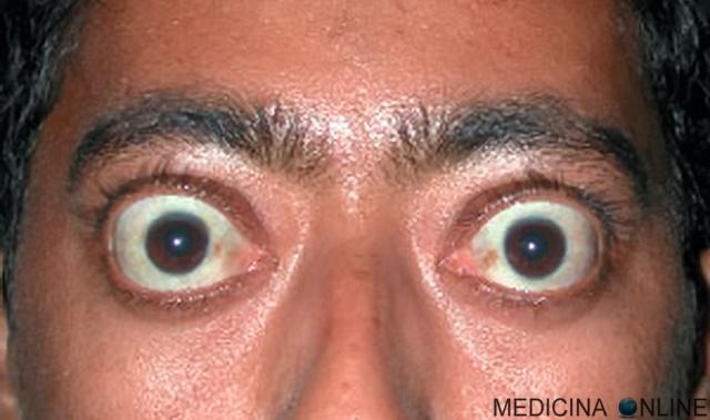 MEDICINA ONLINE ESOFTALMO OCCHIO BULBO OCULARE SOPRACCIGLIO MONOLATERALE IMPROVVISA CURA INTERVENTO OFTALMOPATIA TIROIDE IPERTIROIDISMO ORMONI MORBO BASEDOW