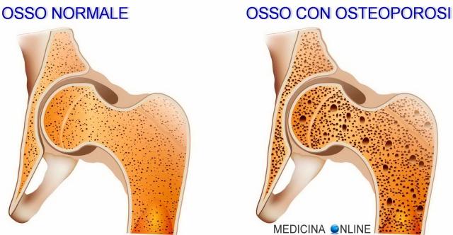 MEDICINA ONLINE FRATTURA OSSO NORMALE FISIOLOGICA TRAUMATICA PATOLOGICA DA STRESS DURATA MICROFRATTURA OSTEOPOROSI METASTASI TUMORE ANZIANO CROLLO VERTEBRA Osteoporose healthy bone pathological fracture.jpg