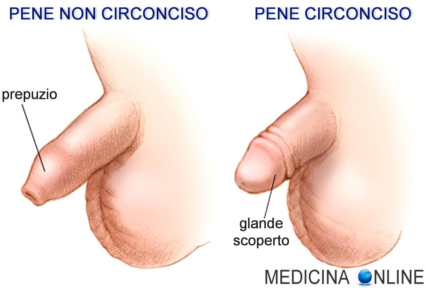 uomini con il pene in erezione