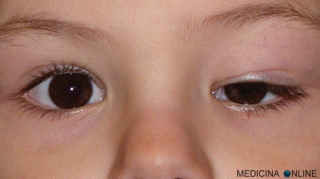 MEDICINA ONLINE PTOSI PALPEBRALE INFANTILE OCCHIO BULBO OCULARE SOPRACCIGLIO MONOLATERALE IMPROVVISA CURA INTERVENTO childhood eyelid ptosis ptosis infantil.jpg