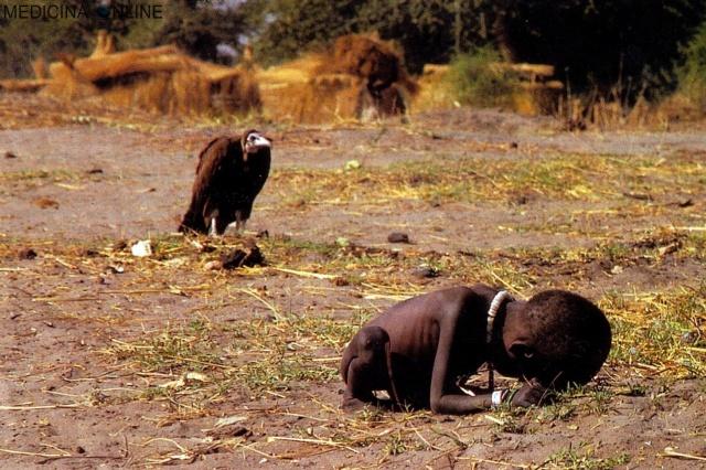 MEDICINA ONLINE SUDAN BABY KID KEVIN CARTER PULITZER PRIZE 1994 FOTO PICTURE IMAGE FAMOUS POVERTA FAME BAMBINO SUDAN AFRICA MAGREZZA MORTE