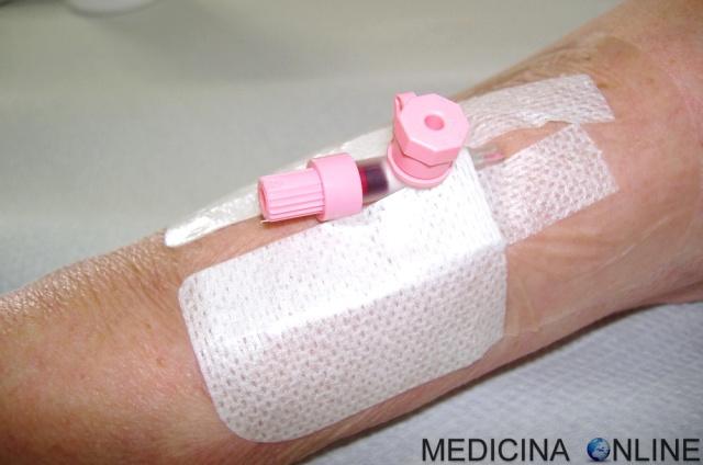 MEDICINA ONLINE CANNULA CATETERE INFERMIERE AGOCANNULA VENOSO PERIFERICO NUTRIZIONE ENTERALE PARENTERALE TOTALE PERIFERICA ASSISTITA ARTIFICIALE SANGUE SACCA SONDINO NASO GASTRICO VENA LINEE GUIDA Placement of intravenous.jpg