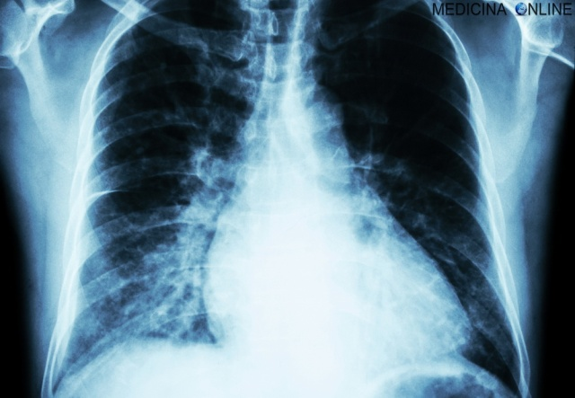 Heart Failure  ( Film X-ray Chest Pa Upright : Show Cardiomegaly