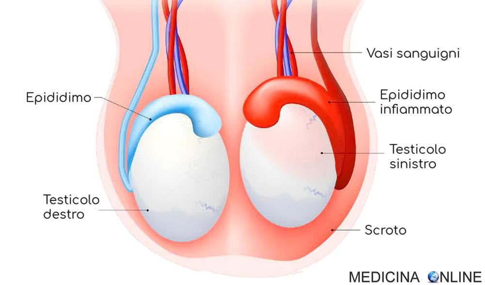 secrezione del pene ed eiaculazione dolorosa
