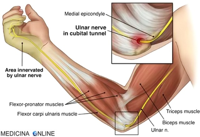 MEDICINA ONLINE SINDROME DEL TUNNEL CUBITALE NERVO ULNARE GOMITO cubital tunnel syndrome ULNAR NERVE DOLORE BRACCIO EMG ECOGRAFIA MANO.jpg
