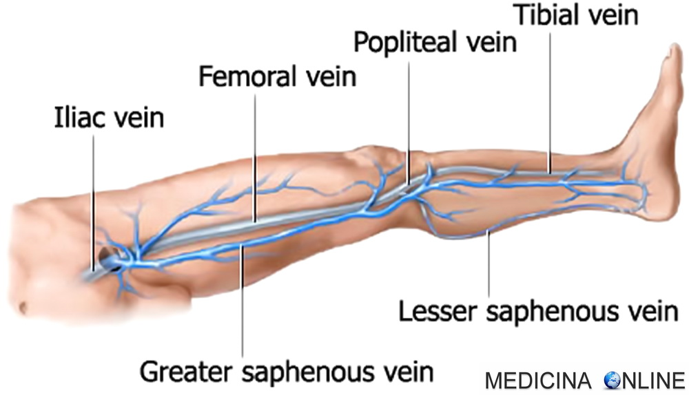 curare prostata venatura femorale