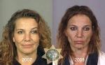 Come riconoscere un tossicodipendente eroinomane?