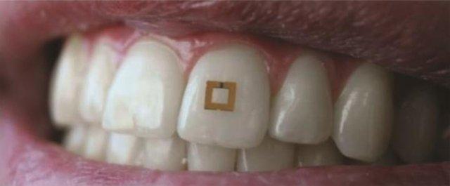 MEDICINA ONLINE Cosa mangi Te lo dice un sensore sui tuoi denti dente.jpg