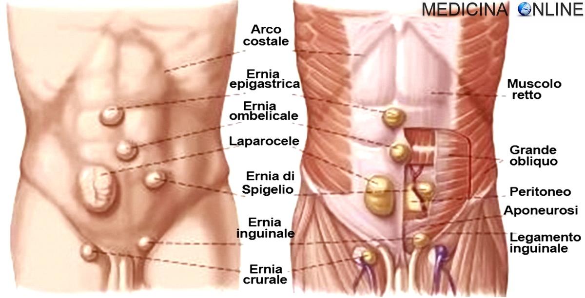 dieta chirurgica allernia iatale