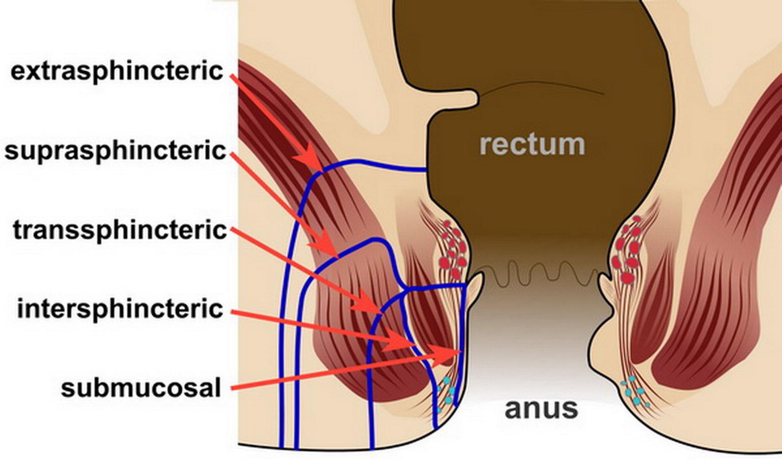 ascesso anale erezione