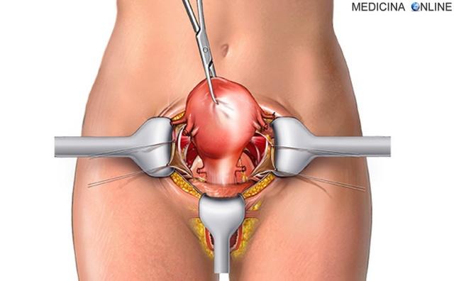 MEDICINA ONLINE LAPAROTOMIA GINECOLOGICA RISCHI COMPLICANZE LAPAROSCOPIO VAGINA UTERO OVAIO GRAVIDRANZA EXTRAUTERINA VANTAGGI gynecologic laparoscopy