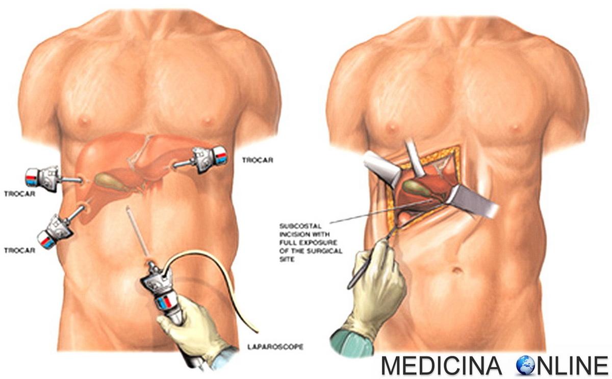 operazione alla prostata tempi di recupero