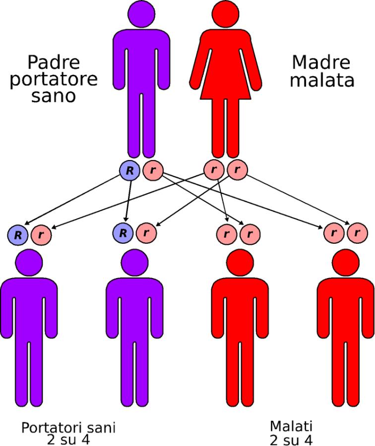 MEDICINA ONLINE MALATTIA GENETICA Trasmissione autosomica recessiva