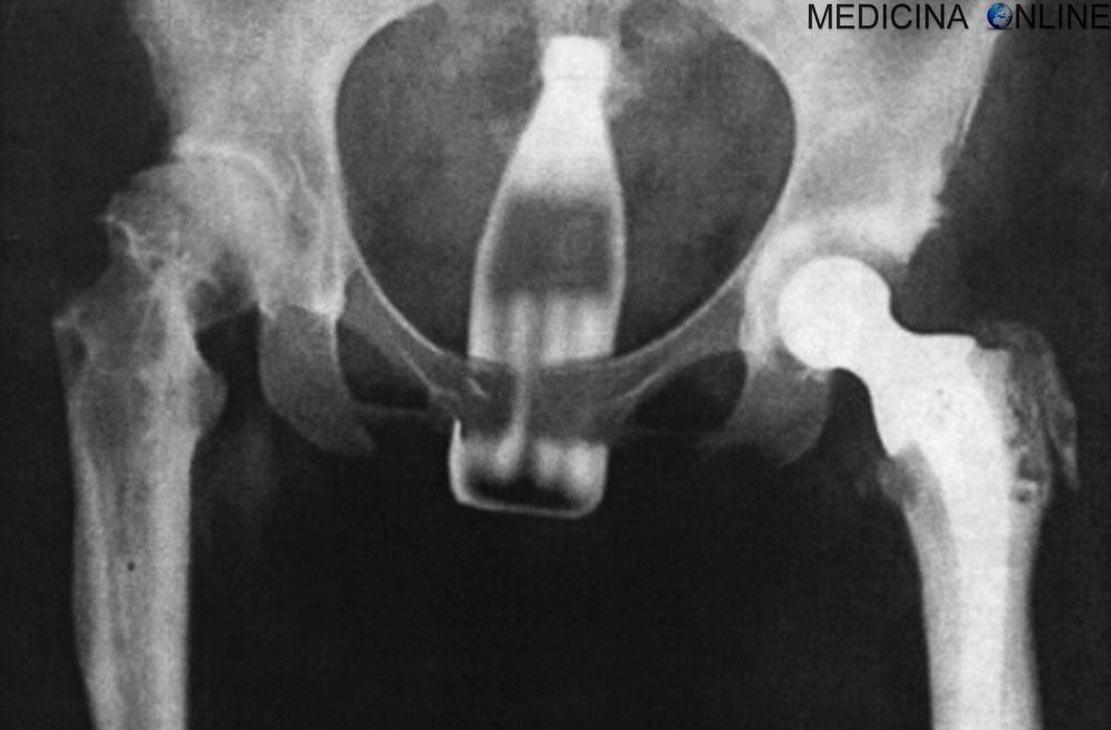 mancanza di erezione x ray video