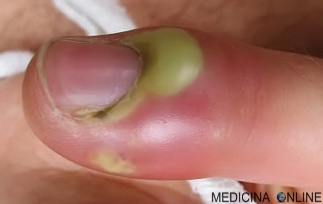 MEDICINA ONLINE PATERECCIO DITO UNGHIA MANO FOTO BRUFOLO FURUNCOLO FAVO PUS EDEMA PURULENTO INFIAMMATORIO INFEZIONE BATTERIO CAUSE TERAPIA ANTIBIOTICI PELLE CUTE DOLORE DERMITE PIODERMIT