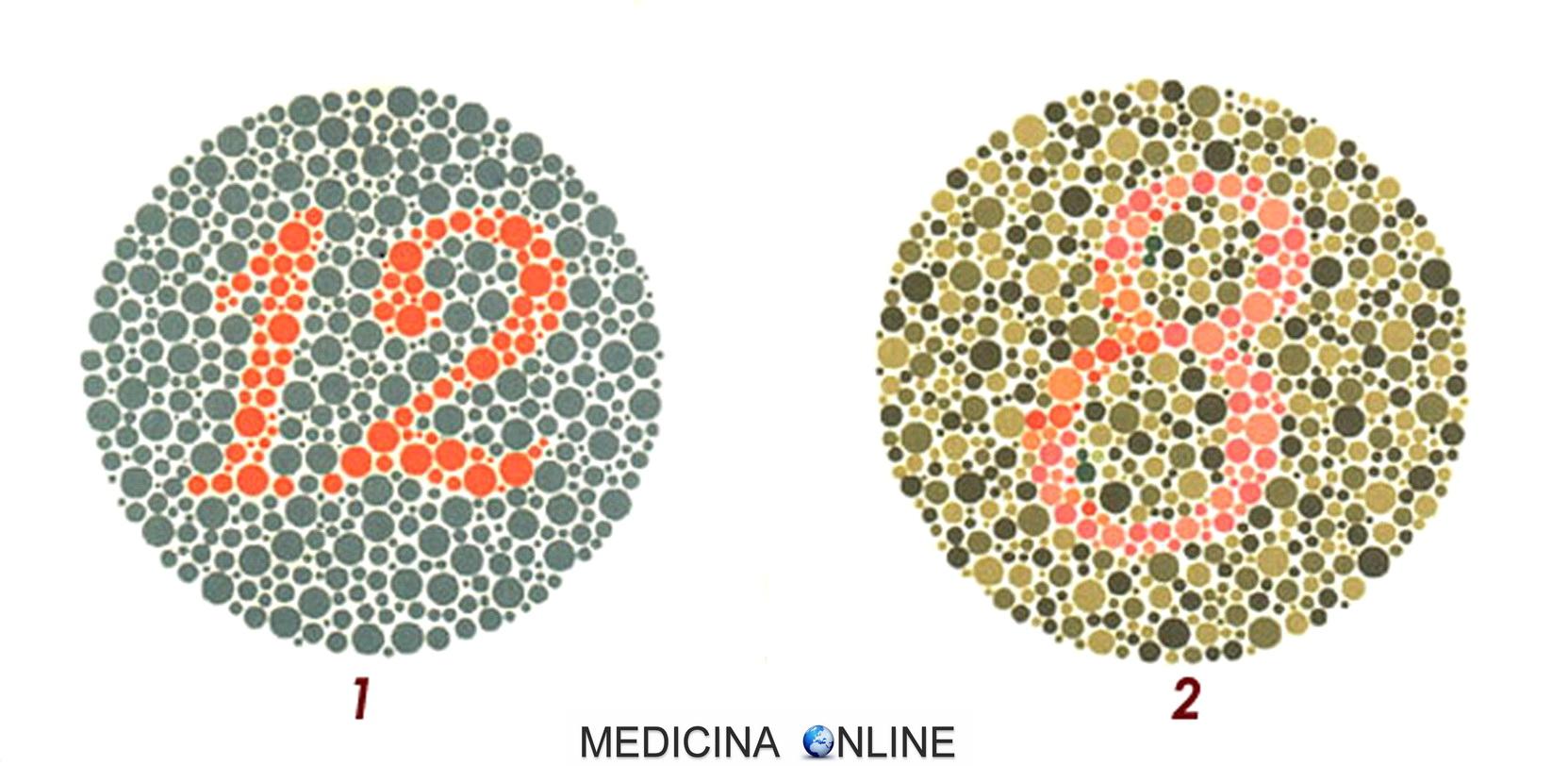 Scopri se sei daltonico con il test delle tavole di - Tavole di ishihara test ...