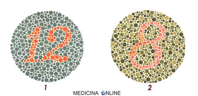 MEDICINA ONLINE Tavole di Ishihara Test Daltonismo Tavole 1-2