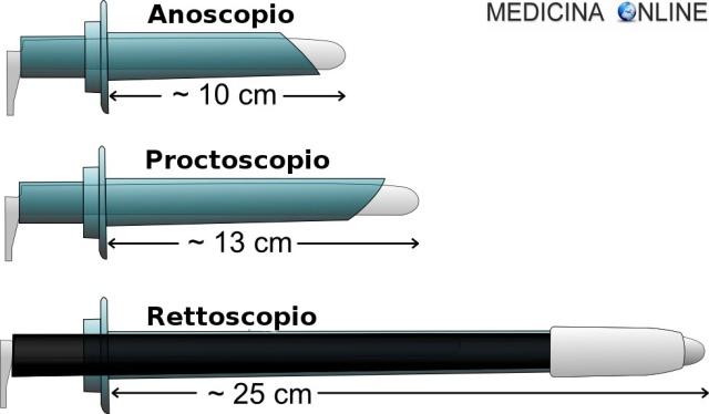 MEDICINA ONLINE ANOSCOPIA PROCTOSCOPIA RETTOSCOPIA COSTO PREPARAZIONE RISCHI PROCEDURA anoscope proctoscope rectoscope